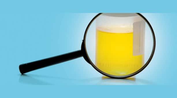 urina chiarissima trasparente bianca schiumosa