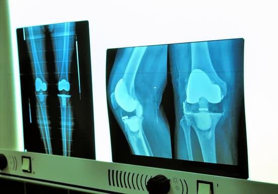 gonfiore al ginocchio dopo l'intervento al ginocchio
