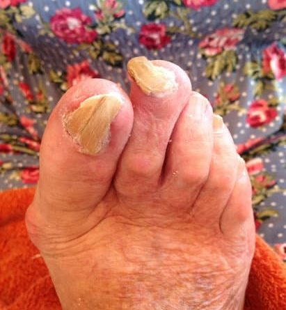 micosi delle unghie del piede