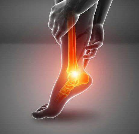 Ansia e bruciore ai piedi e alle gambe : Quali sono le cause e i rimedi migliori ?