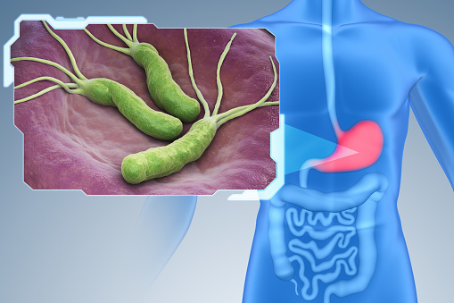 dieta helicobacter pylori