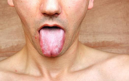 macchie bianche sulla lingua