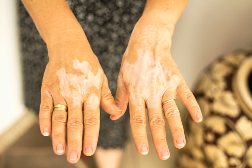 macchie bianche sulla pelle dopo sole