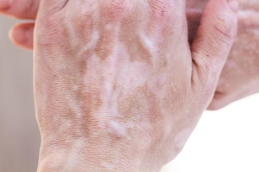 macchie bianche sulla pelle funghi
