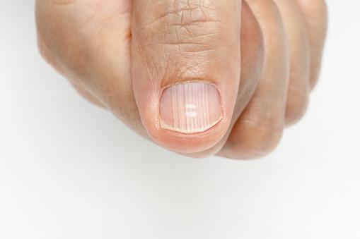 unghie rigate e tiroide