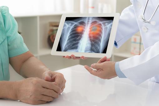 cancro ai polmoni le unghie dei piedi sono una spia