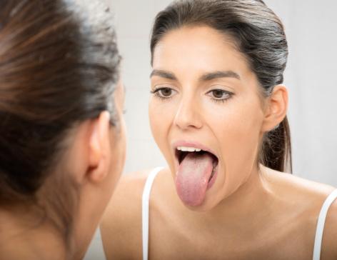 cause lingua bianca