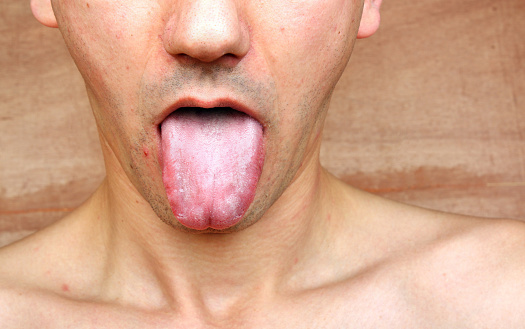 lingua bianca e fegato