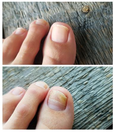 miglior prodotto per micosi unghie
