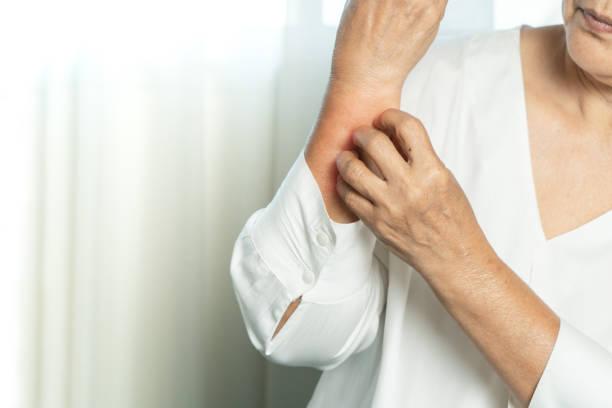 orticaria da stress cibi da evitare