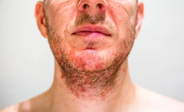 dermatite seborroica crema miracolosa